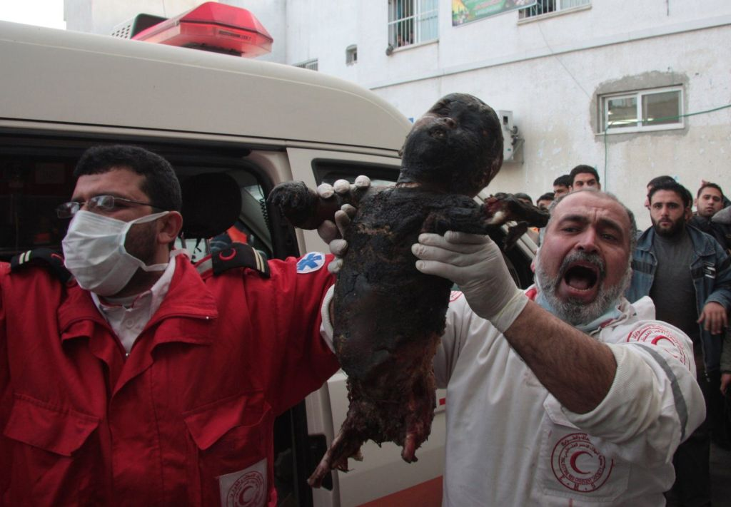 4.-A-torched-dismembered-and-dead-Palestinian-baby-in-Gaza.-Apartheid-Israel-is-awarding-its-soldiers-for-their-achievements-in-last-years-atrocious-war-on-Gaza